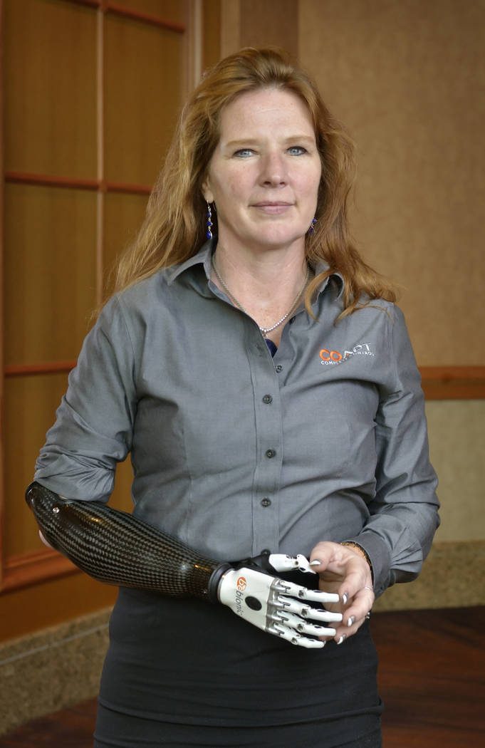 Coapt client Jodie O'Connell-Ponkos is shown at the American Orthotic & Prosthetic Association convention Sept. 6, 2017. Coapt makes control electronics for arm prostheses. (Bill Hughes Las Vega ...